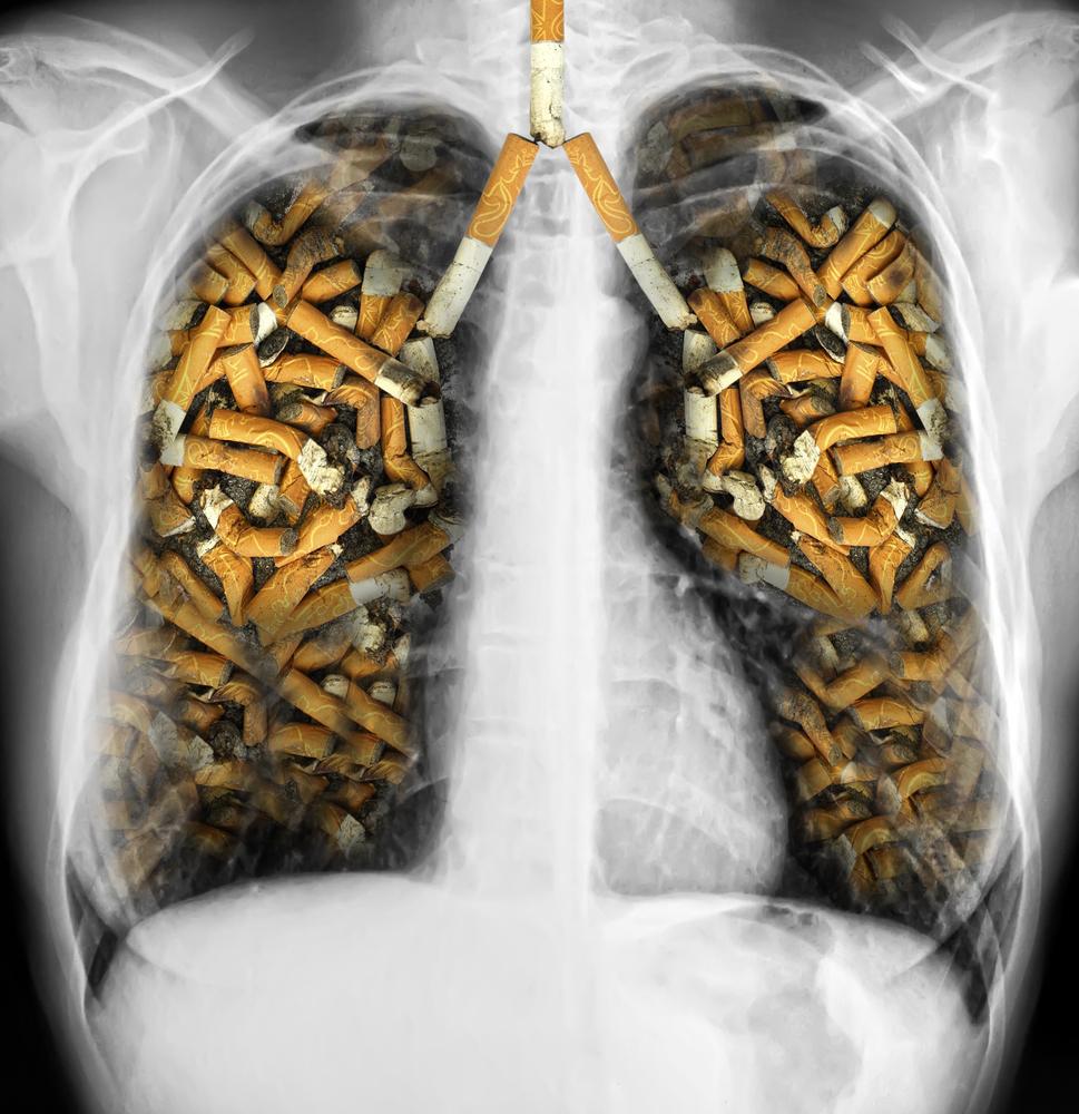 Как почистить легкие после многолетнего курения Быстрая очистка легких 13